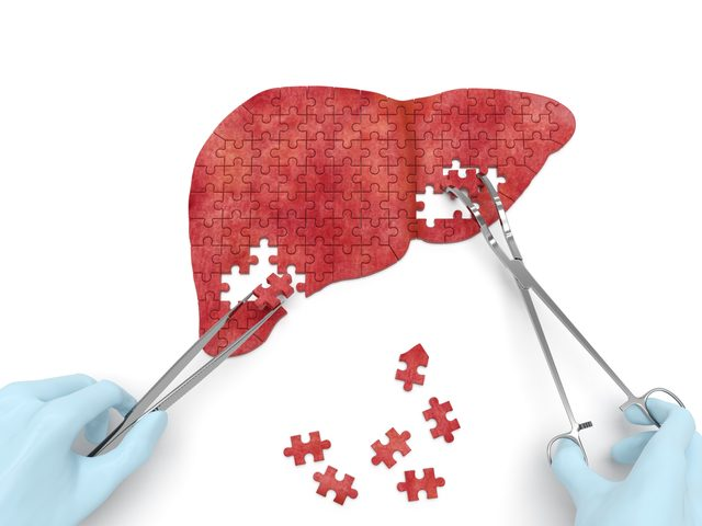NGM's NASH drug cuts liver fat, inflammation, scarring in phase 2, shares surge