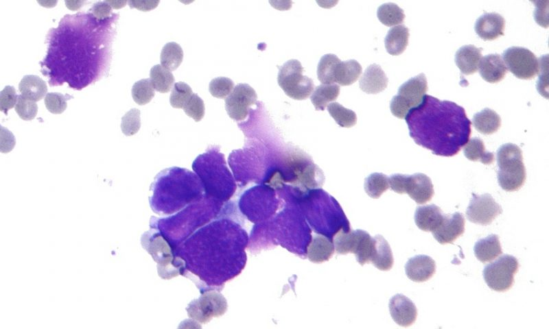 Attacking drug-resistant tumors with Sierra's struggling CHK1 blocker
