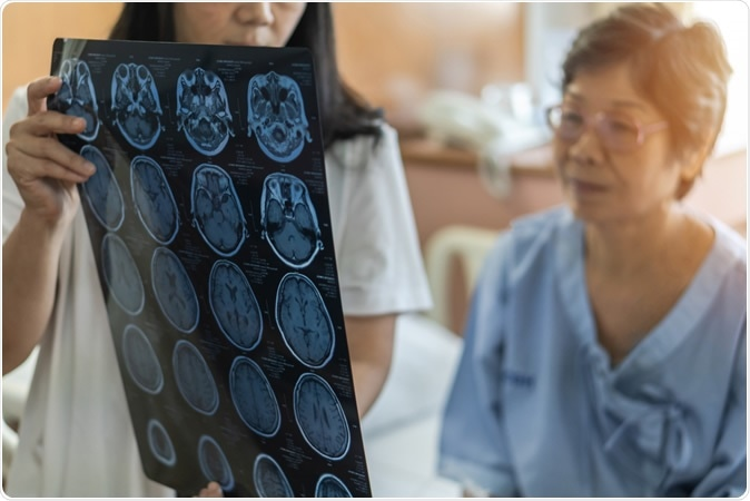 Stress-linked disorders increase the risk of later brain degeneration