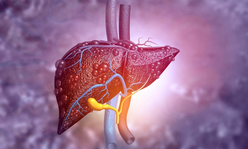 Genentech's Tecentriq-Avastin Combo Approved for HCC, an Improvement on Standard of Care