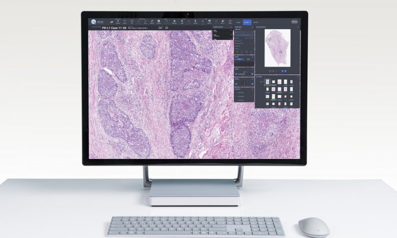 Roche adds PD-L1-spotting AI to its non-small cell lung cancer pathology platform