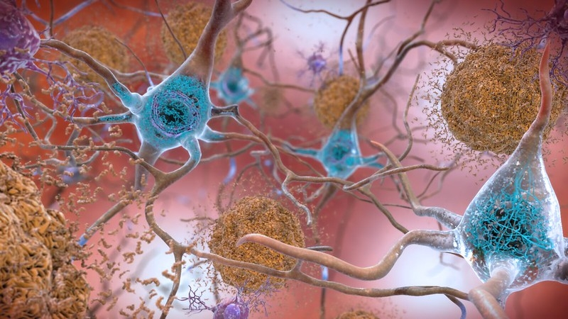 Pipeline report: Alzheimer's disease, from amyloid and tau to gene therapies and beyond