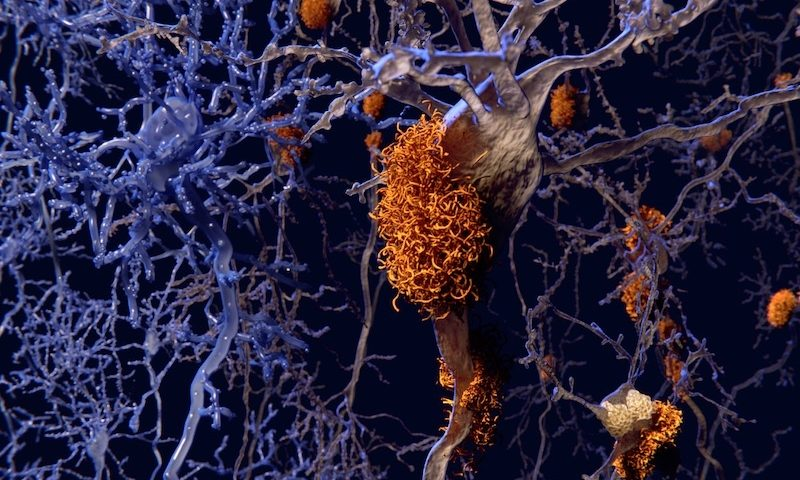 Alector, Annexon, Athira on what an aducanumab approval could mean for Alzheimer's R&D