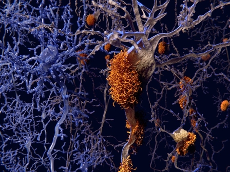 Roche refreshingly cautious on Alzheimer's hopeful gantenerumab amid growing hype from rivals