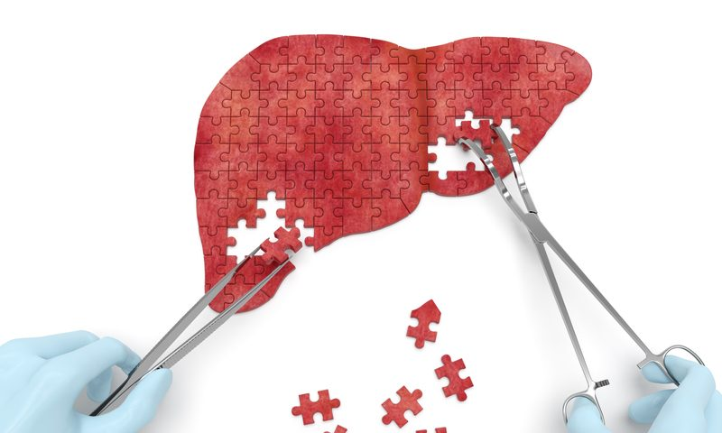 Perspectum's liver-scanning software scores FDA clearance for planning cancer surgeries