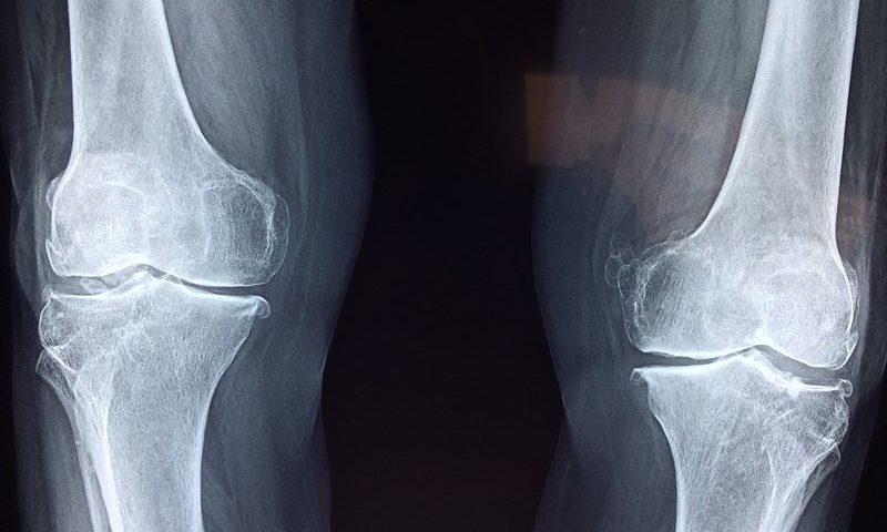 Bone Therapeutics' lead program falls short in knee osteoarthritis