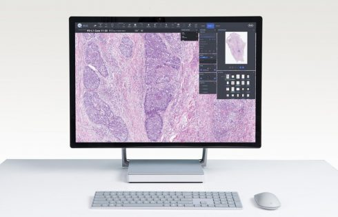 Roche welcomes PathAI into its open digital pathology initiative